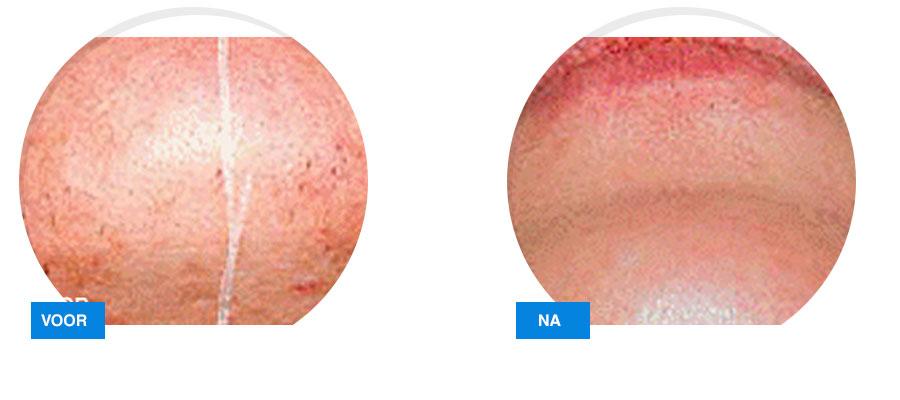 huid laseren rosacea